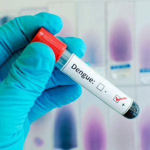 Dengue Pre-vaccination Blood Test